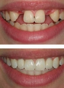 dental implants portland milwaukie or